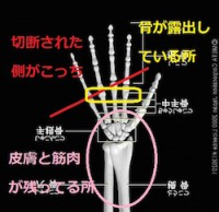 CCPあかりちゃんの欠損している手の状態